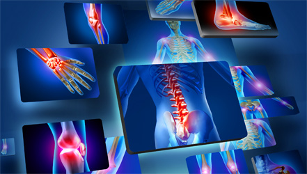 Bones and joint regeneration with the help of stem cells