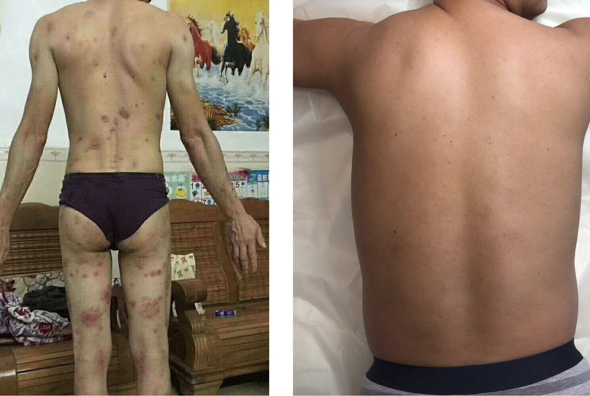 Successful Psoriasis Treatment With Stem Cells